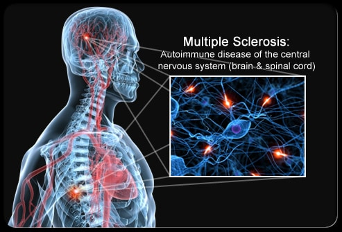 Cannabis use in the Management of Multiple Sclerosis Symptoms: a Patient's Perspective